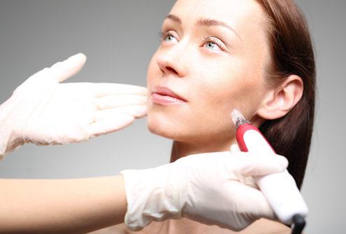 Microneedling als Gesichtsbehandlung bei Rosi Troll